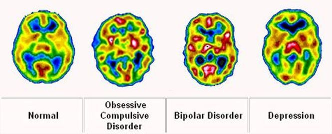 how-to-tell-the-difference-between-bipolar-disorder-and-depression-neuroinnovations